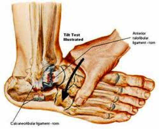 ankle ligament tear